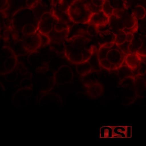 OSI - Blood 2009