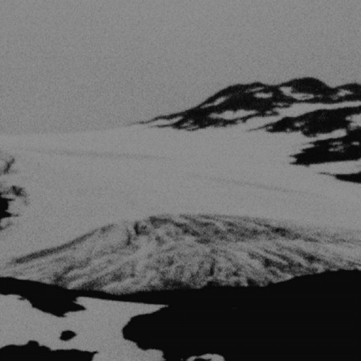 Das Gletschertor / Das schwarze Metall-Eisen